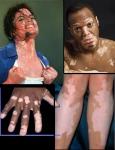 vitiligo-pics